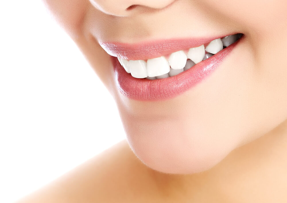 3 Cara Memutihkan Gigi Yang Bisa Anda Coba