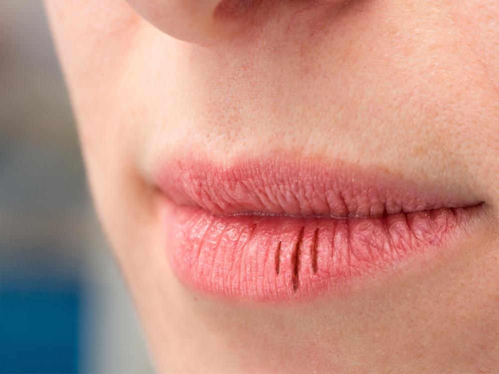 Merawat bibir pecah-pecah