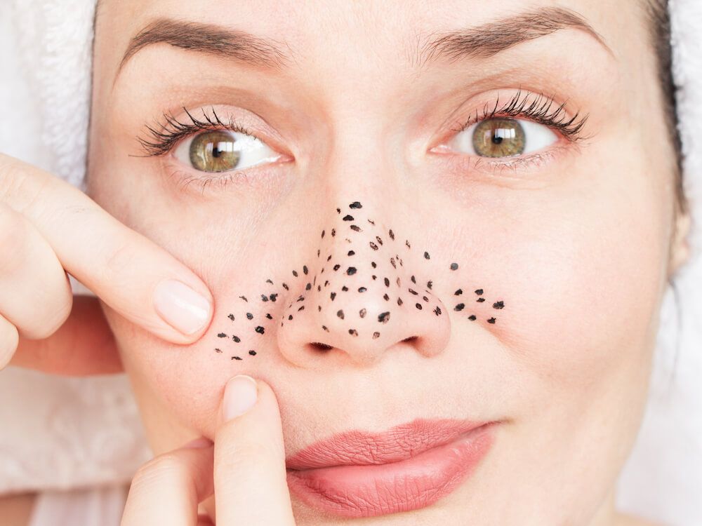 Kandungan Skin Care untuk Mengatasi Komedo