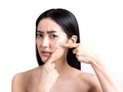 Blind-Pimples
