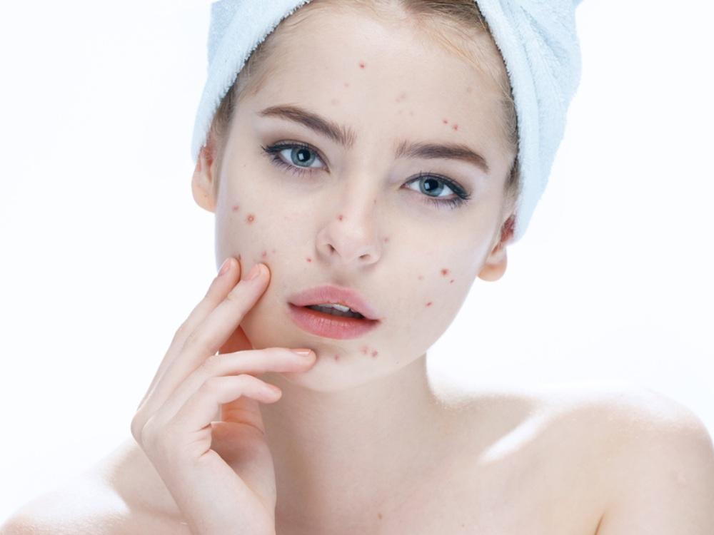 acne-prone