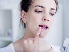 jerawat di area bibir