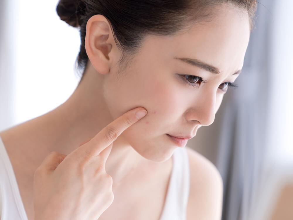Tahapan skin care untuk bekas jerawat