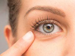 Penyebab dan Cara Mengatasi Tipe Lingkaran Hitam di Bawah Mata