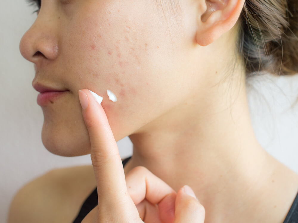 Rekomendasi 5 Produk ElsheSkin untuk Kulit Berjerawat