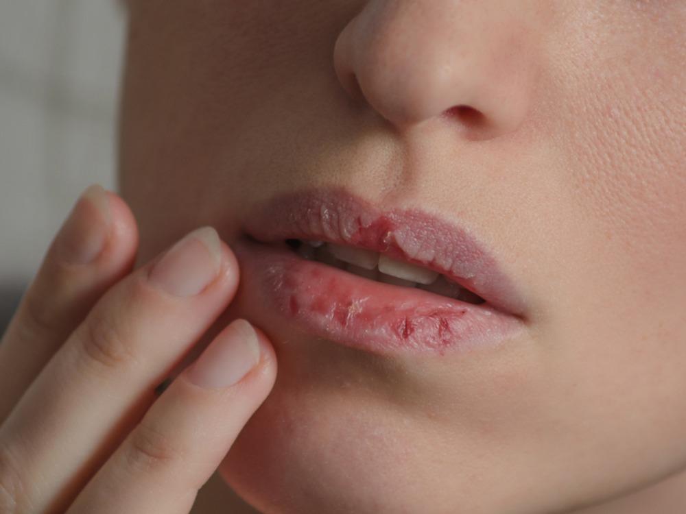 mengelupas kulit bibir