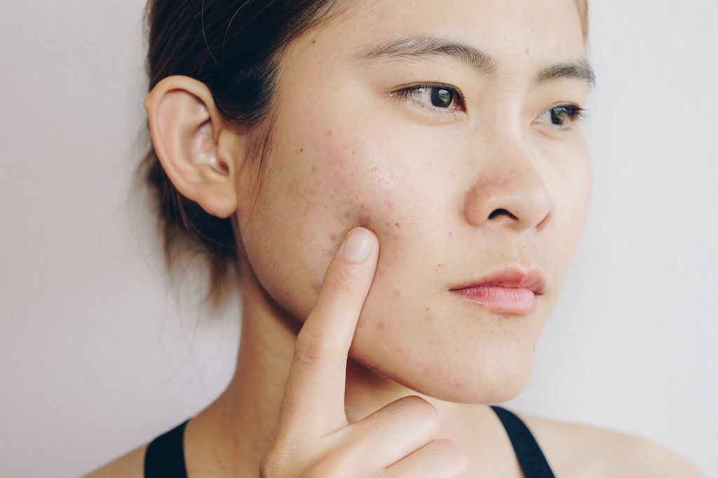 Perbedaan Bekas Jerawat Post Inflammatory Hyperpigmentation dan Post Inflammatory Erythema