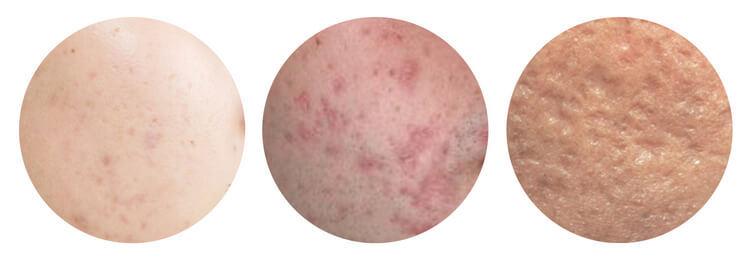 Post Inflammatory Hyperpigmentation dan Post Inflammatory Erythema