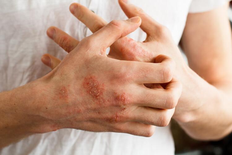 Beberapa Hal Yang Perlu Anda Ketahui Tentang Masalah Kulit Eczema