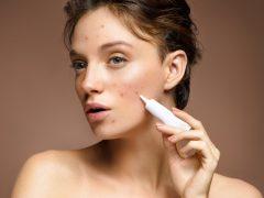 kandungan skin care untuk menghilangkan bekas jerawat