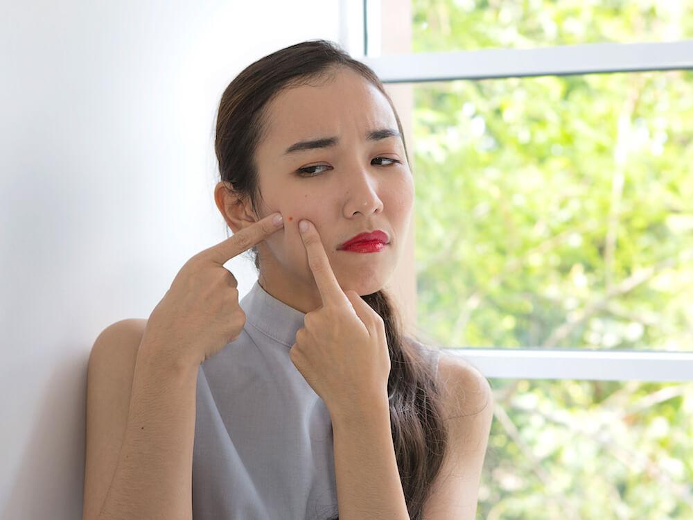 Pilihan Produk Skin Care dari Brand Lokal yang Dibuat untuk Kulit Berjerawat