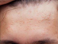 Mengenal Fungal Acne