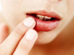 rawat bibir kering