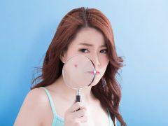Penyebab Cystic Acne