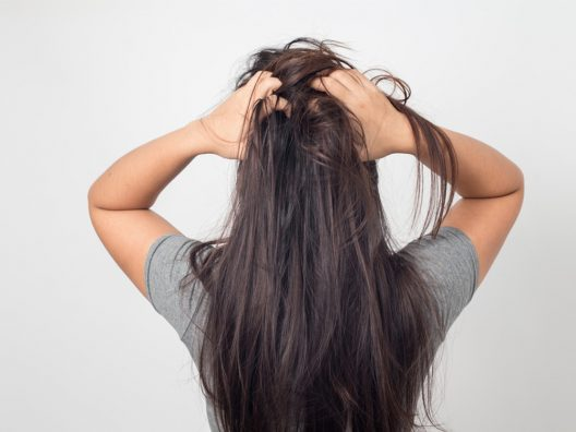 Kulit Kepala Berminyak dan Mudah Gatal