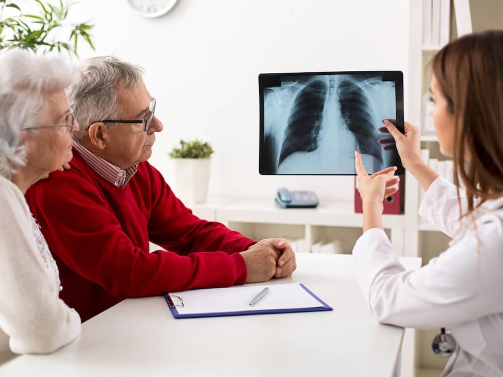 Gejala Kanker Paru-paru yang Perlu Anda Waspadai