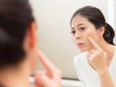 Mengatasi Masalah Hiperpigmentasi