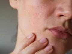 Kulit Sensitif dan Kulit Alergi