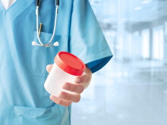 warna urin untuk indikator kesehatan