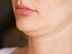 Cara mengatasi double chin dengan bahan alami
