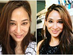 Tips Ampuh Untuk Atasi Adult Acne Menurut Dr Anjali Mahto