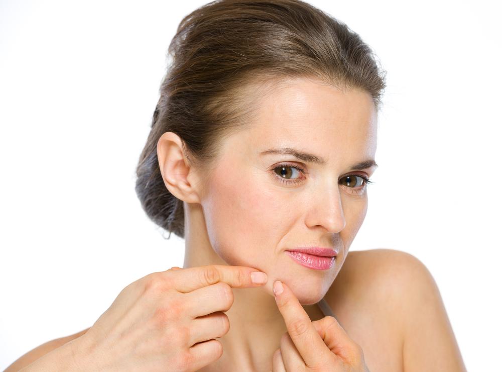 Fakta Tentang Adult Acne