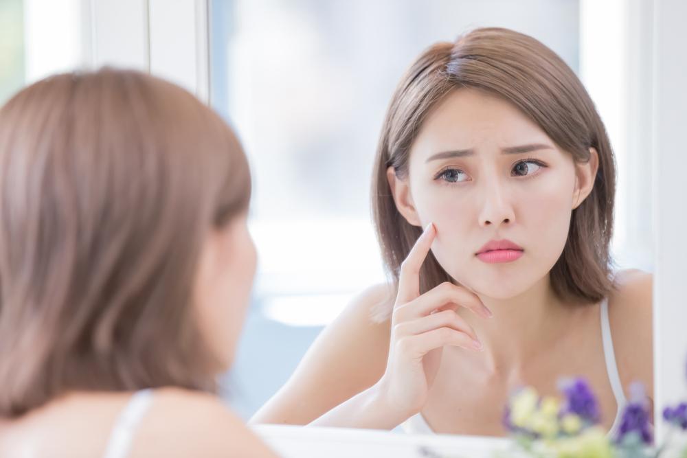 Perbedaan Antara Jerawat yang Muncul di Usia Remaja dan Dewasa