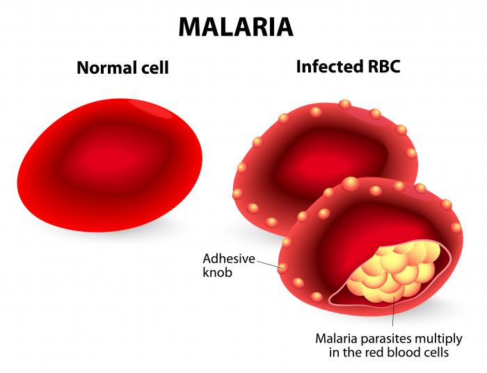 how to stop vomiting in malaria