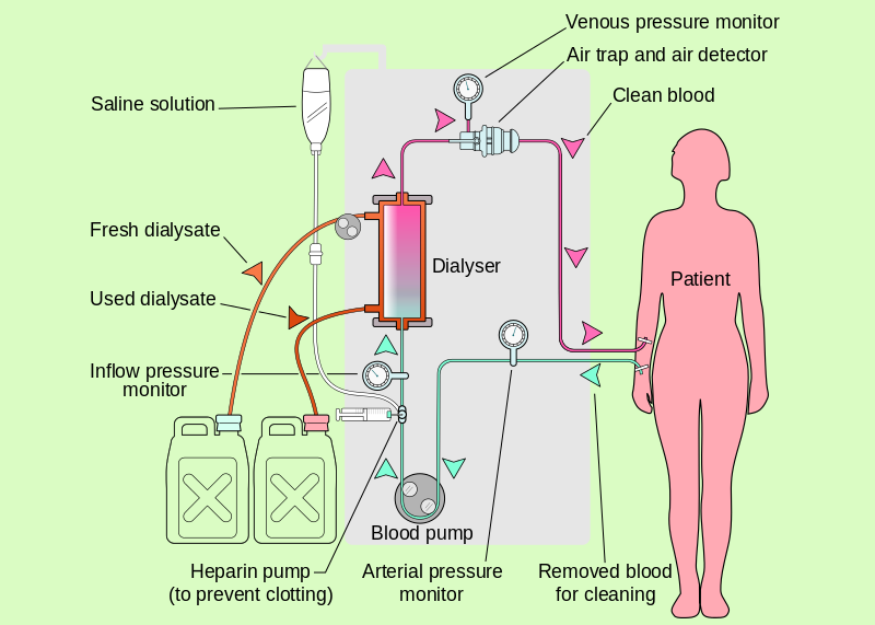 Dialysis dialysis meaning dialysis machine procedure dialysis ccuart Images