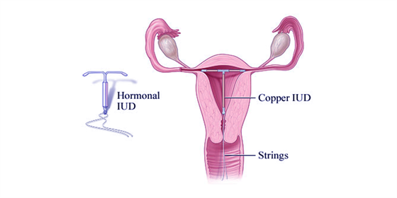 Intrauterine devices
