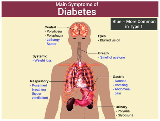 signs and symptoms of diabetes mellitus type 2 pdf