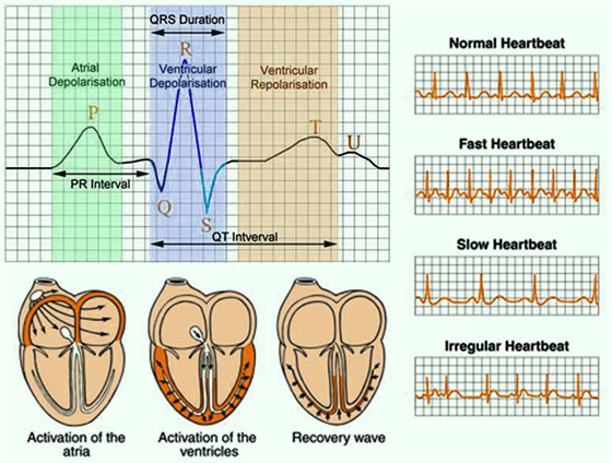 electrocardiogram test ecg procedure types and medical uses. Black Bedroom Furniture Sets. Home Design Ideas