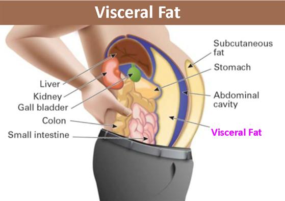 Viceral Fat 104