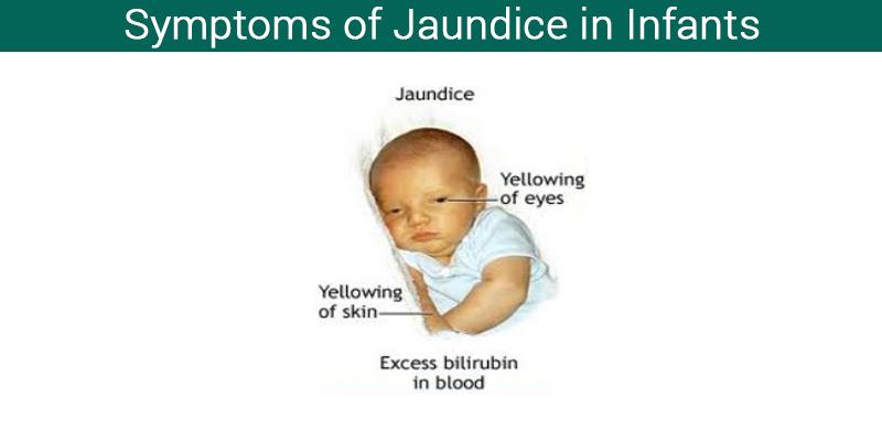 Symptoms of jaundice in infants