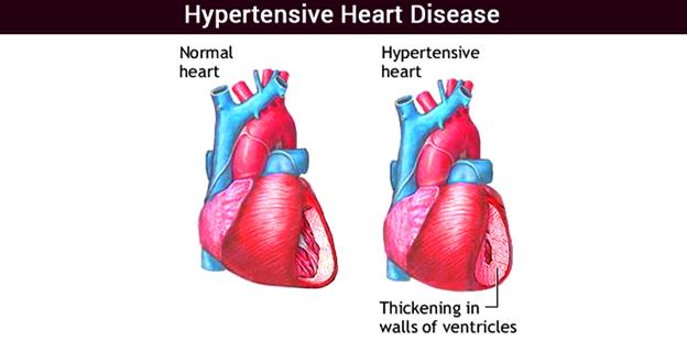 Hypertensive heart diseases
