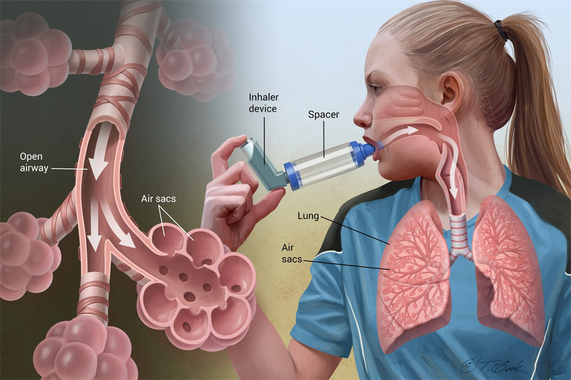 an analysis of the causes and treatments of asthma a chronic lung disease