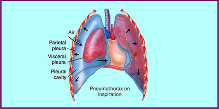 streptococcus pneumoniae bacteria causing pneumonia biology essay Streptococcus pyogenes pneumonia:  often referred to as group a streptococcus bacteria,  am 24012012 veröffentlicht streptococcus pneumoniae,.