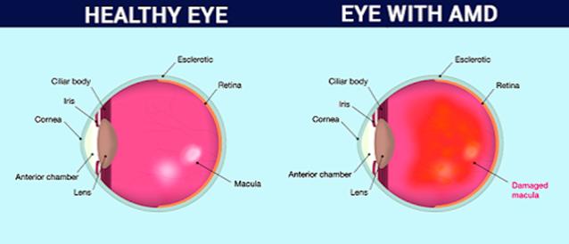 Eye Diseases List Of Eye Diseases Eye Problems