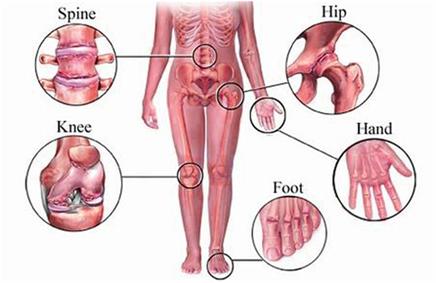 Osteoarthritis Types