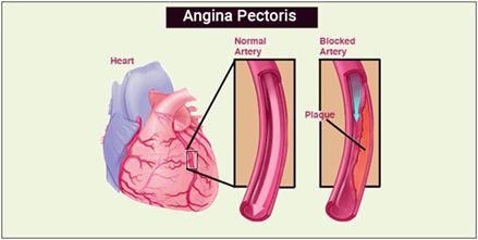 angina pectoris this middle slayer essay