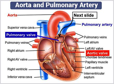 Aorta and Pulmonary Artery
