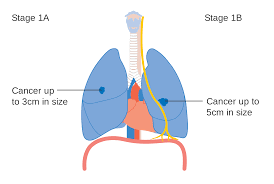 Stages ofLung Cancer