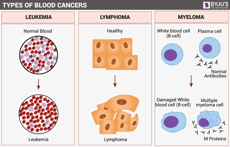 Types of Blood Cancer