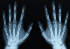 How do X-Rays Work?
