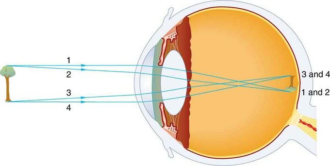 Structure of human eye parts of the human eye cornea sclera lens human eye structure and functioning ccuart Image collections