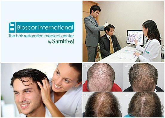 HairRestoration