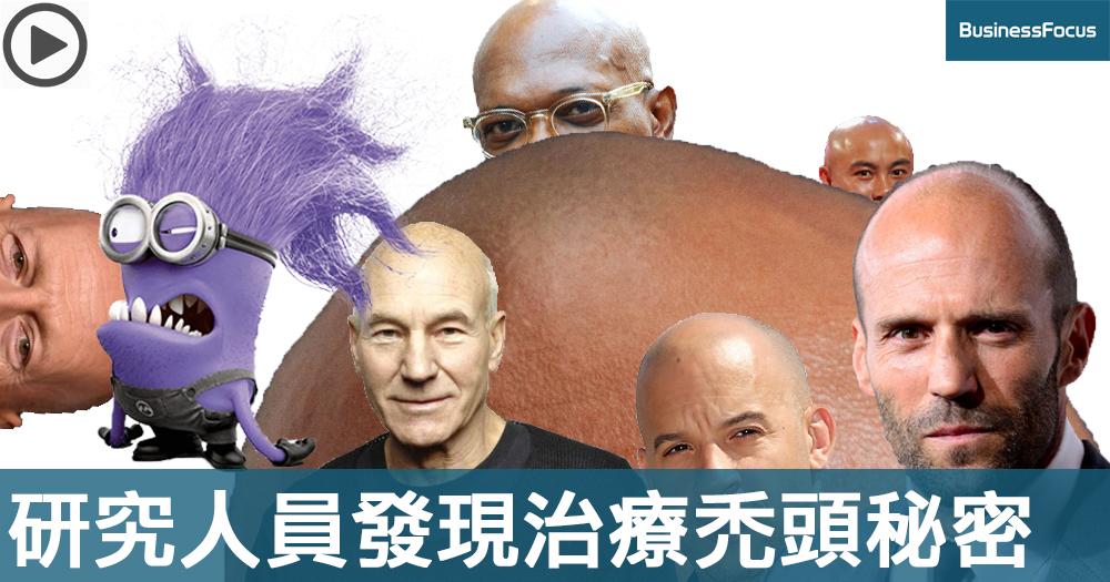 【禿頭佬的福音】研究人員意外發現治療禿頭秘密,效果刮目相看