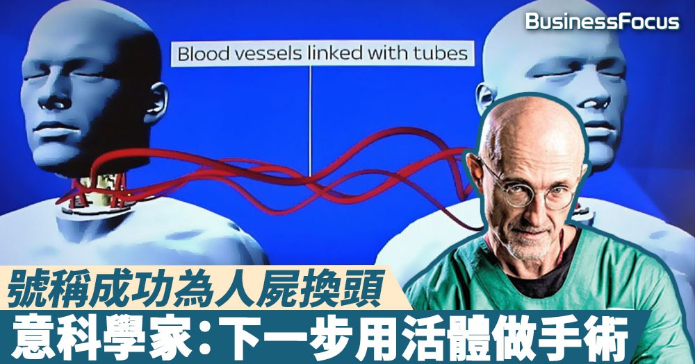 【世界首宗】號稱成功為人屍換頭,意科學家:下一步用活體做手術