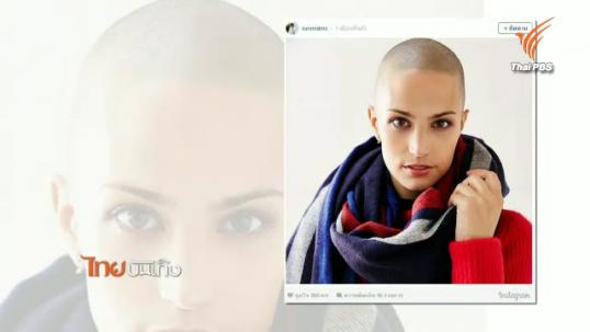 สาวสวยไม่ยอมปล่อยให้มะเร็งขัดขวางชีวิต-ดูแลรูปร่างหน้าตาจนก้าวมาเป็นนางแบบได้