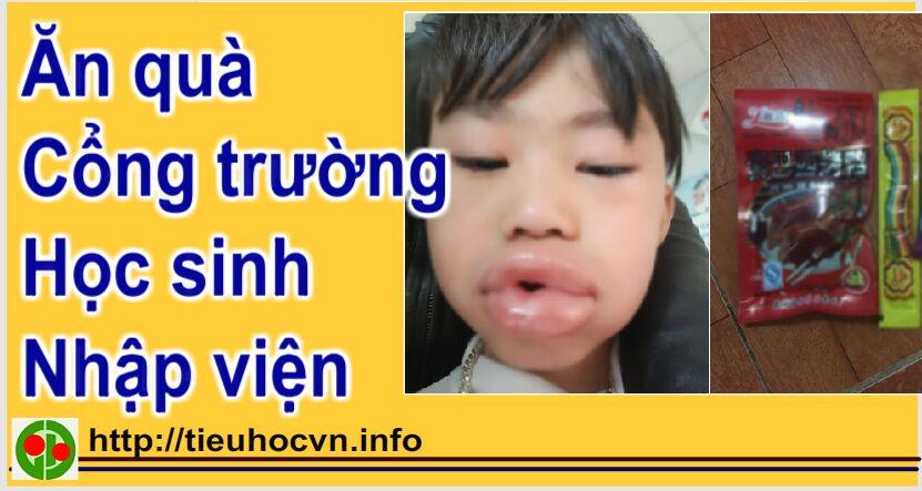 Vì ăn cổng trường Học sinh tiểu học Lai Châu phải nhập viện